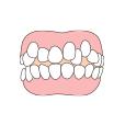 歯が凸凹している
