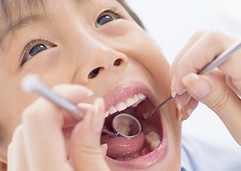 小児期の矯正治療には様々なメリットがあります